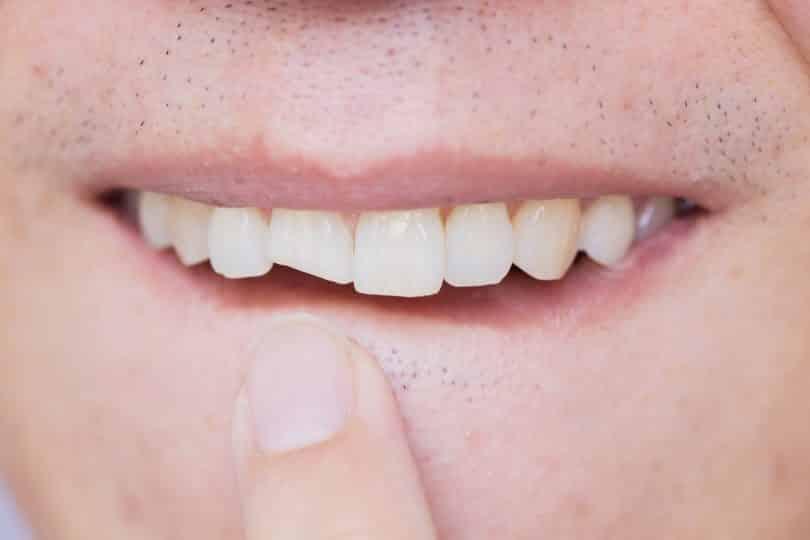 Homem apontando o seu dente quebrado