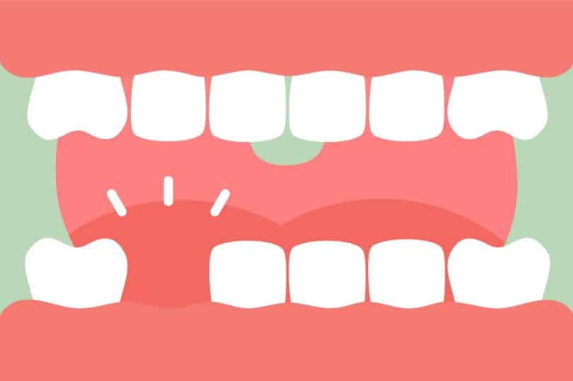 ilustração de uma boca faltando um dente.