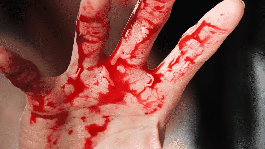 Imagem de uma mão ensanguentada