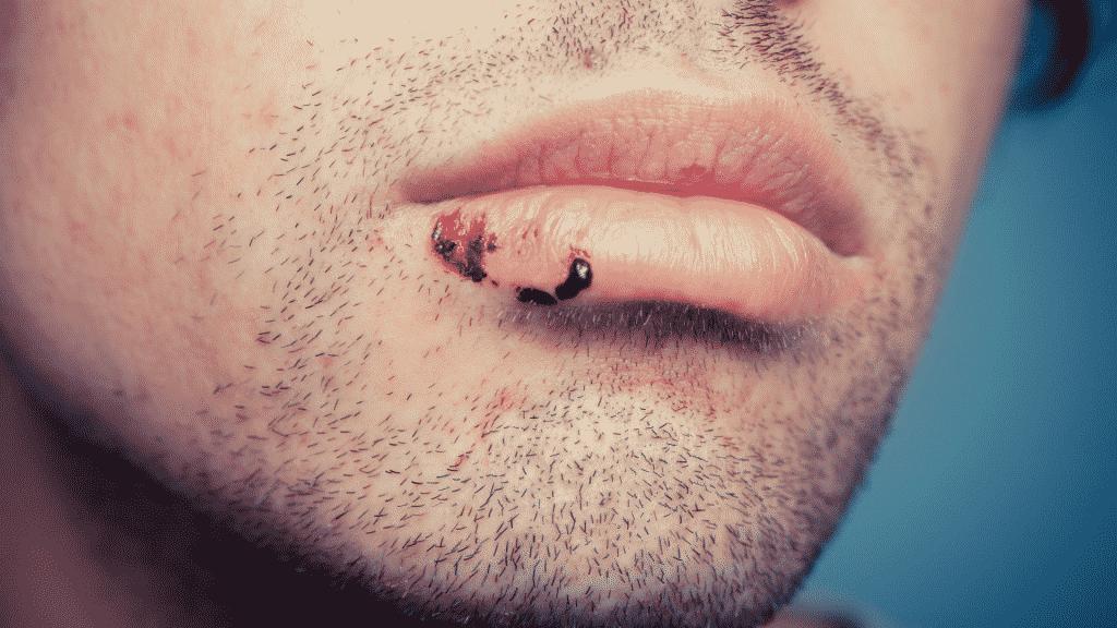 Imagem de um homem com a boca machucada
