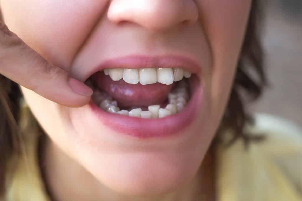 Uma mulher exibindo sua boca com alguns dentes tortos.