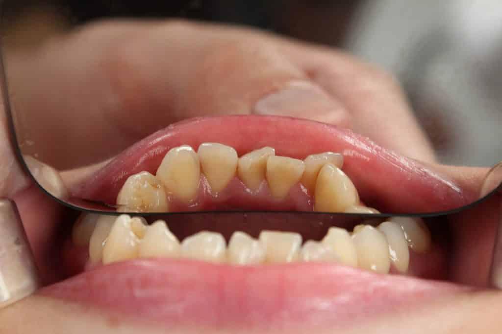 Dentes tortos sendo exibidos em um espelho, vistos de cima.